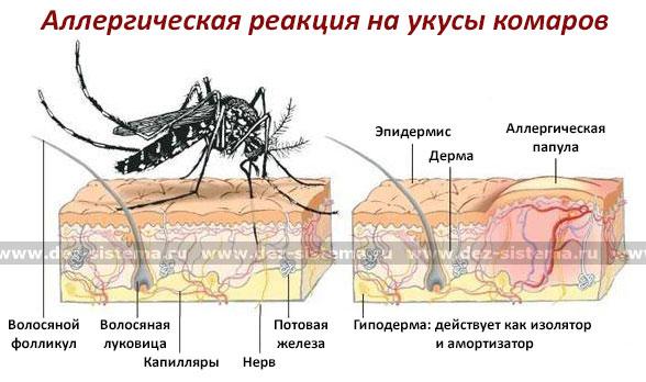 Аллергическая реакция на укусы комаров